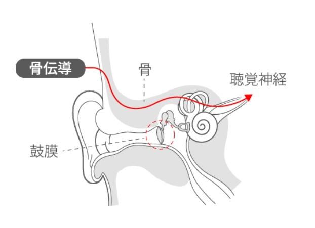 骨伝導イヤホン 完全ワイヤレス earsopen PEACE TW-1 感想 レビュー ブログ 難聴 音漏れ 不具合 充電